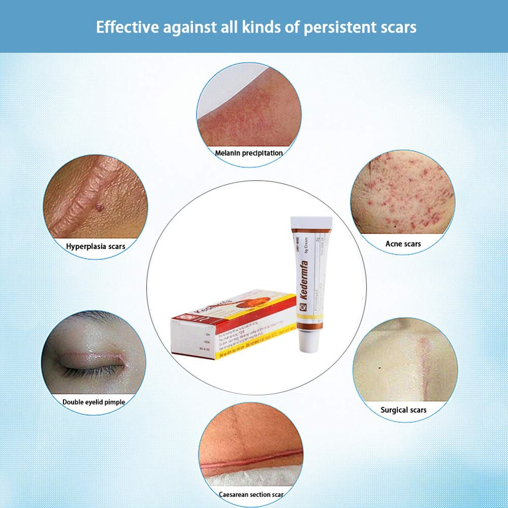 Vietnam Scar Removal Cream Acne & Spots Treatment Anti-Itch Burn, Scald Scar Removal Ointment by RedDhong (Image #4)