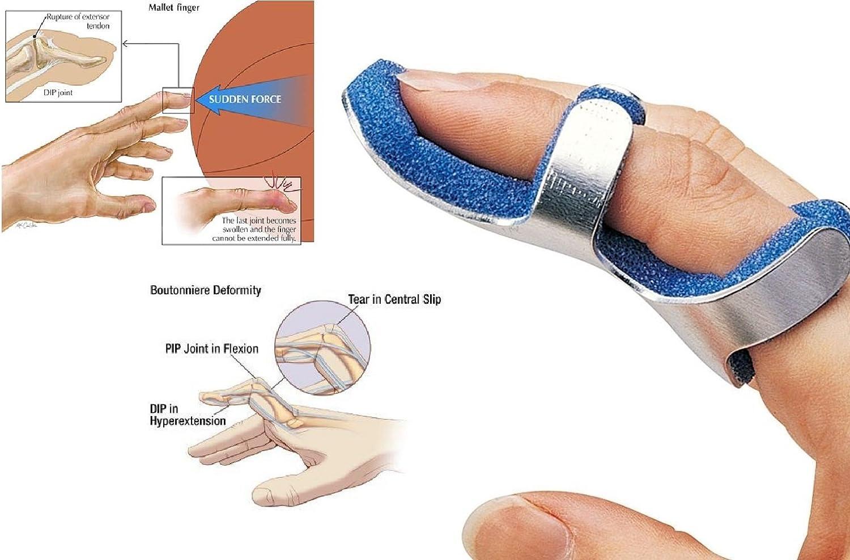 Nueva dedo immobilising férula con espuma suave - ideal para ...