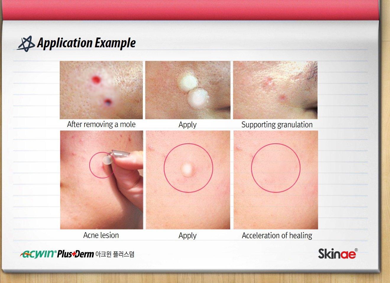 Kết quả hình ảnh cho skinae acwin trouble spot care patch transparent