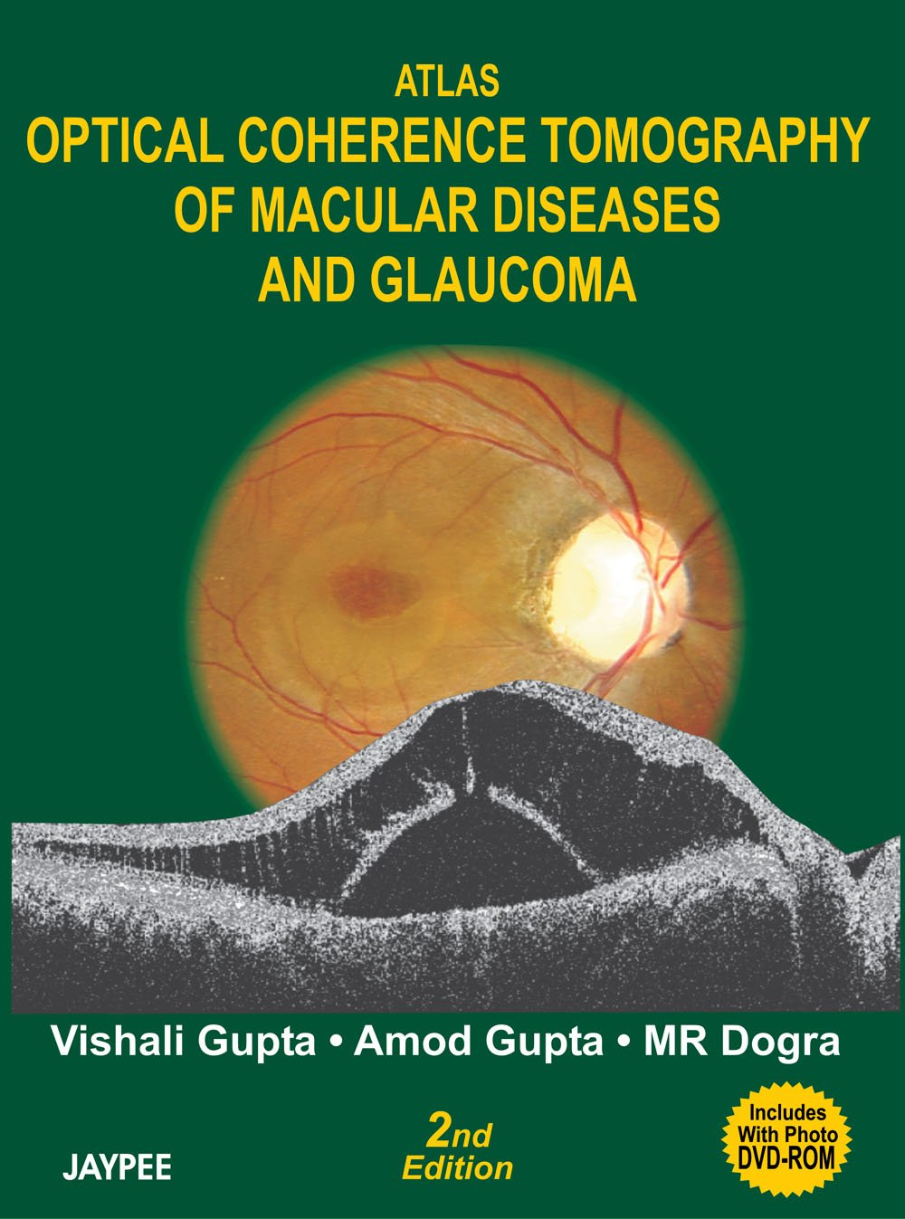 Atlas Optical Coherence Tomography of Macular Diseases and Glaucoma PDF