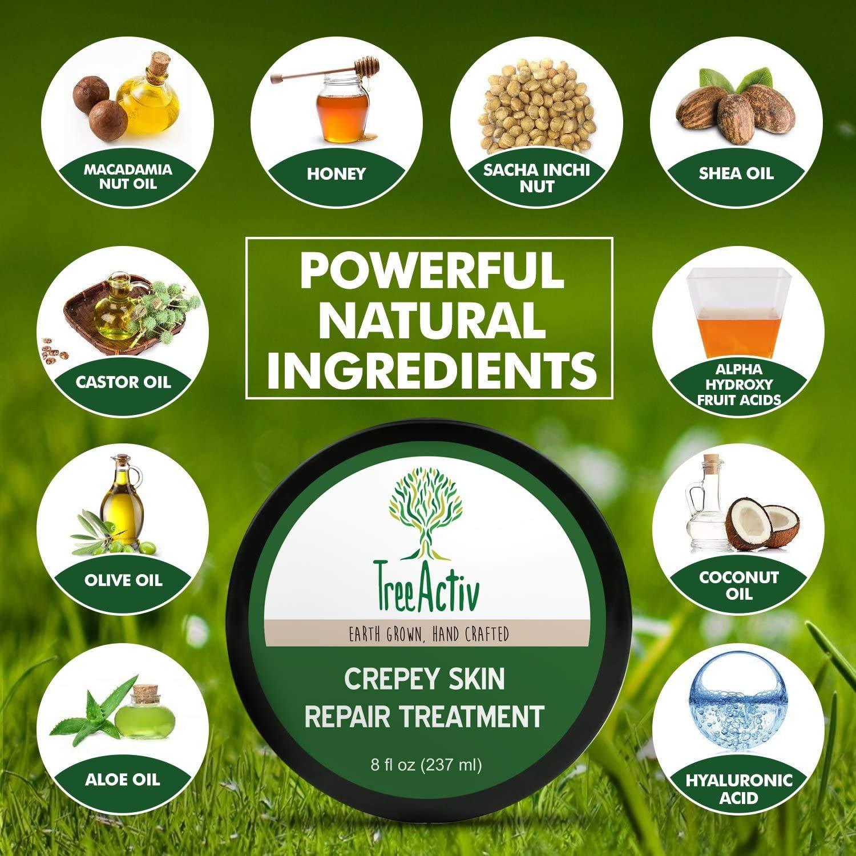 TreeActiv Best lotion for Crepey Skin Repair Treatment