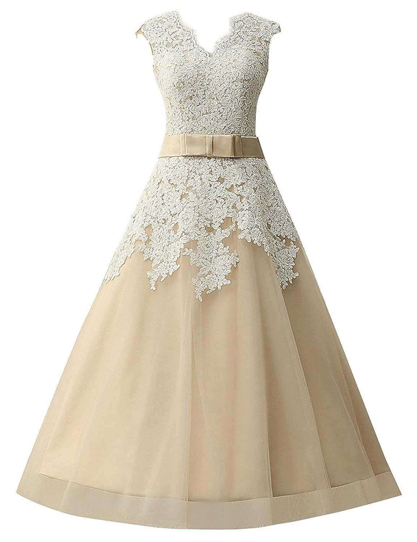 Promworld Women's Cap Sleeve V Neck Lace Applique A Line Tea Length Wedding Dress Bridal Dress