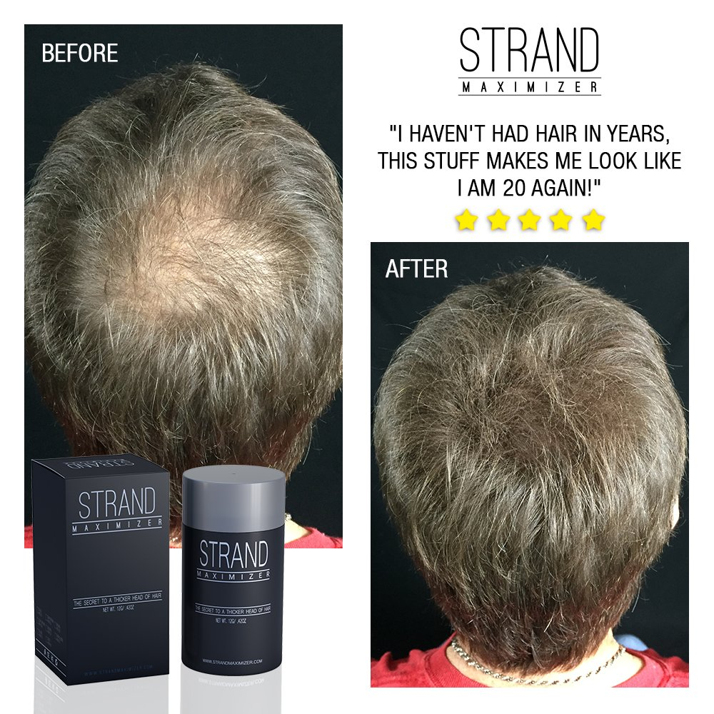 Amazon Fill In Powder Hair Fibers Hide Thinning Hair For Both