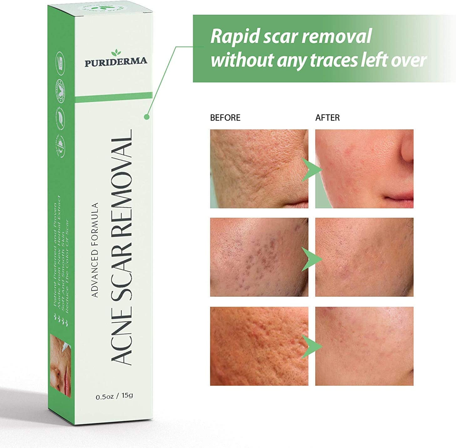 Amazon Com Acne Scar Removal Cream Treatment For Face Remove Lighten Old New Scars Spots Marks Natural Gentle Effective Herbal Extracts Formula By Puriderma 0 5oz 15g Kitchen Dining