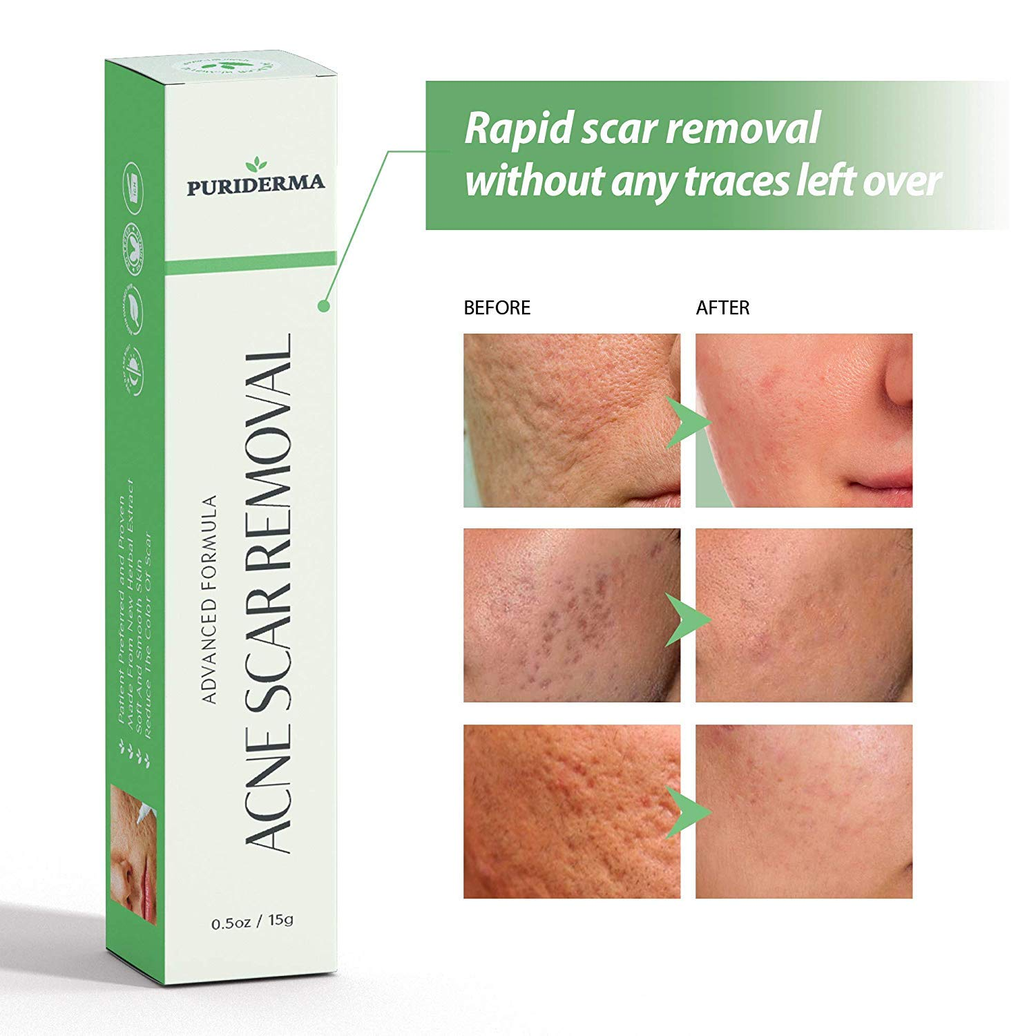 Puriderma Acne Scar Removal Cream Treatment For Face Remove And