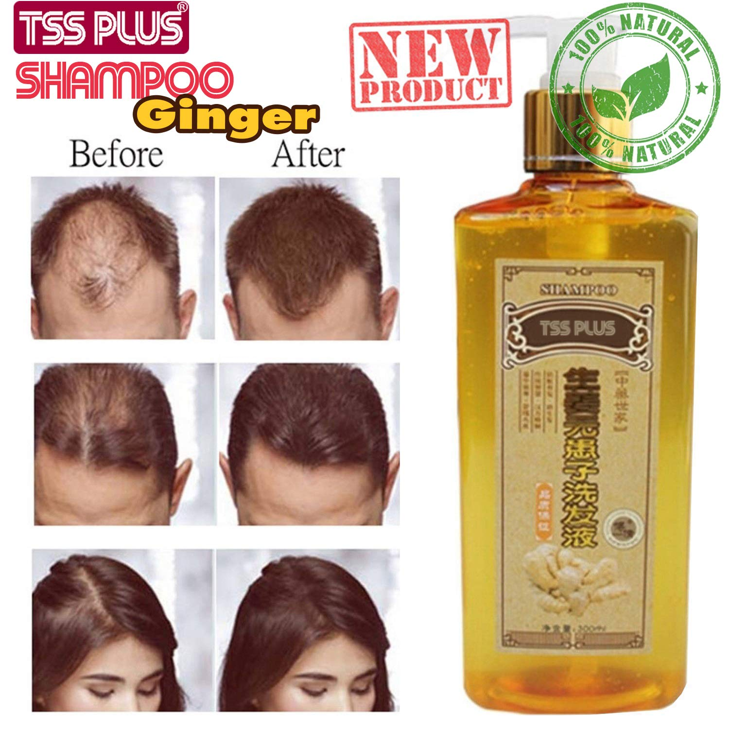 Amazon Com Tssplus New Ginger Genuine Professional Hair Ginger Shampoo Hair Regrowth Dense Fast Thicker Hair Growth Conditioner Anti Hair Loss Product Beauty