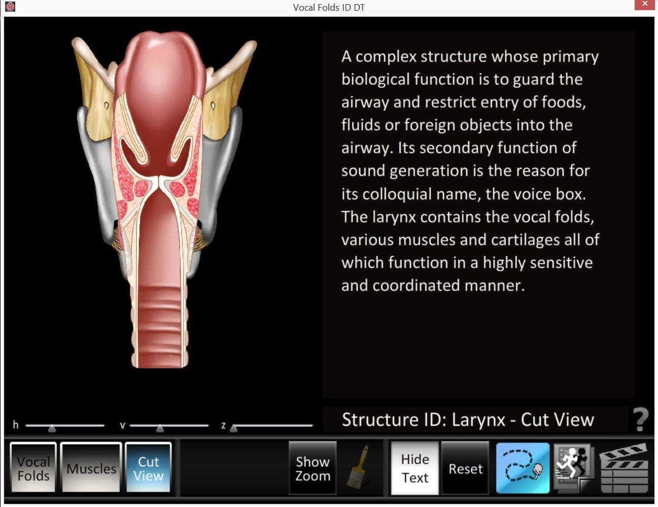 Larynx Poster with Software Larynx and Vocal Fold ID Speech