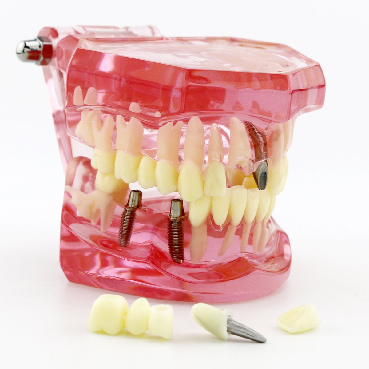 amazon com dental power 3 5x binocular loupes 420mm working