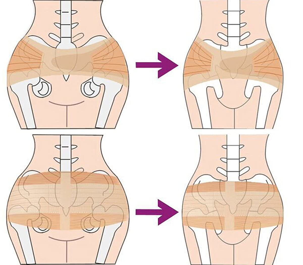 XL Aivtalk Womens Hip Shaper Pelvis Support Belt Hip Sacroiliac Pain Relief Correct Brace Binder Band Postpartum Recovery Pelvis Belt Maternity