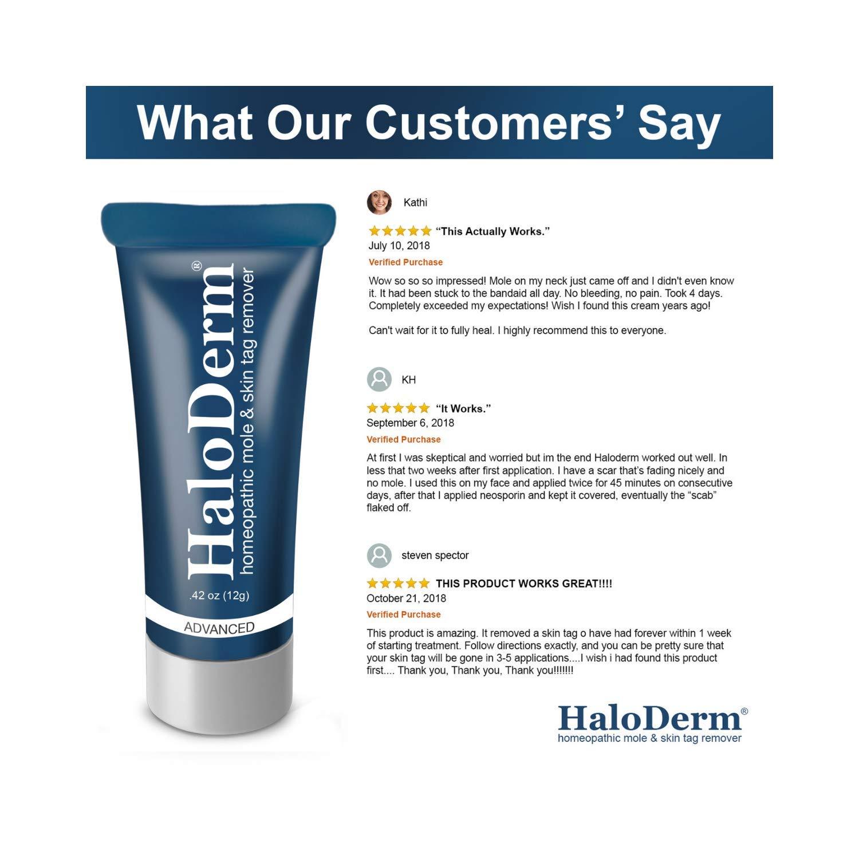 HaloDerm Advanced Skin Tag Remover & Mole Remover - All Natural Skin Tag  Cream - Remove up to 10