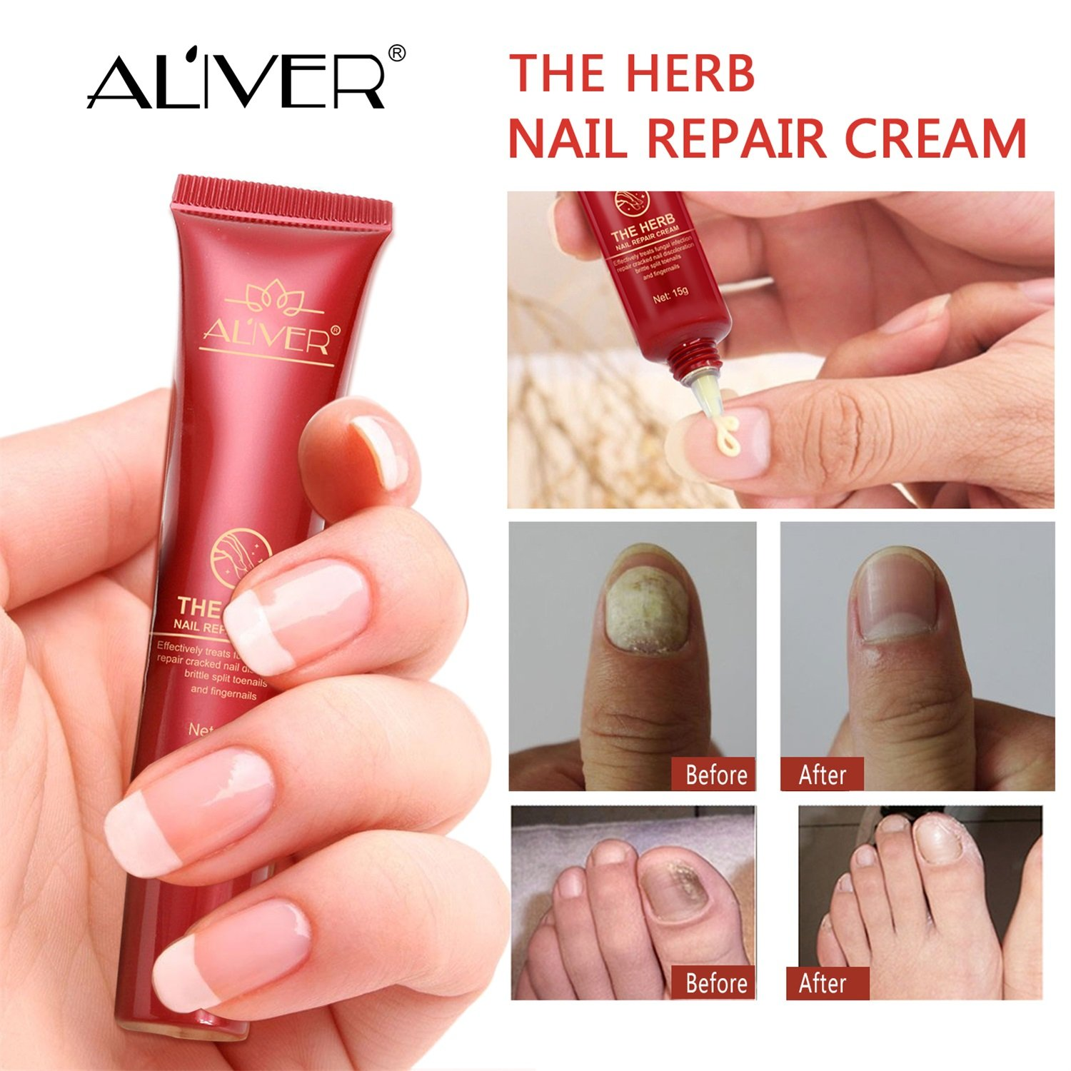 Nail Fungal Treatment, Aliver The Herb Foot Nail Repair Cream Protector, Nail Care Treatment of Anti-Fungal Cream, Effective Against Nail Fungus, Restores the Healthy Appearance of Nails (15g) by ALIVER (Image #2)