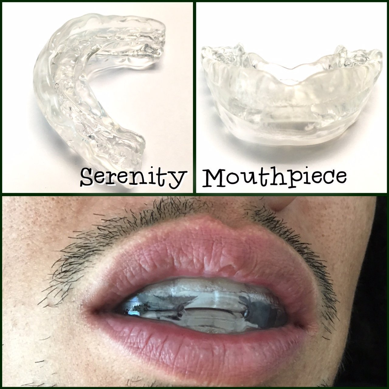 Serenity Bruxism Night Sleep Aid Mouthpiece Boil and Bite Guard