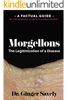 Natural Ways for Healing Mites and Morgellons - Kindle
