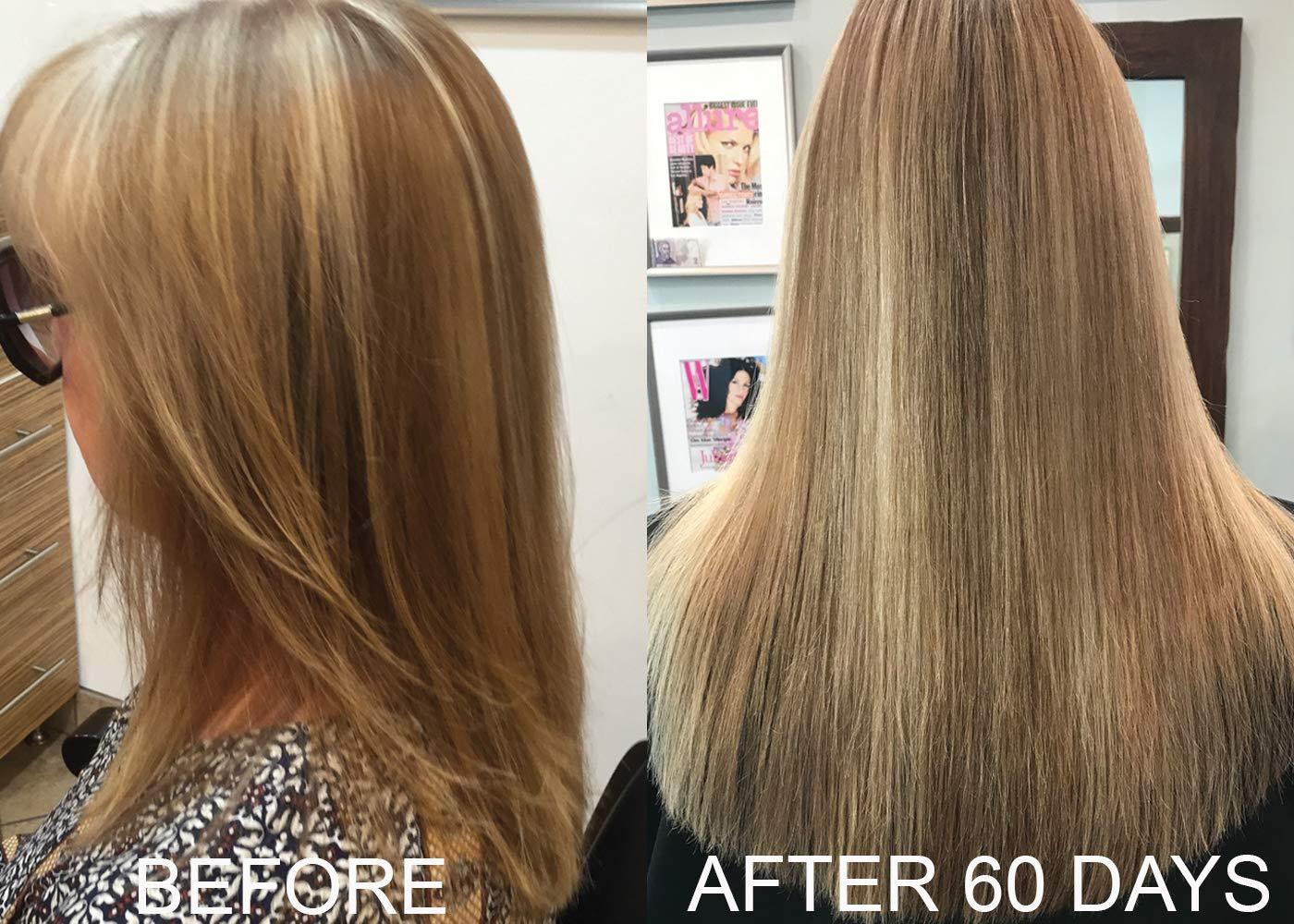 Biotin - Champú y acondicionador de vitamina para el crecimiento del cabello (alta potencia), champú biotin + acondicionador para el crecimiento más rápido ...