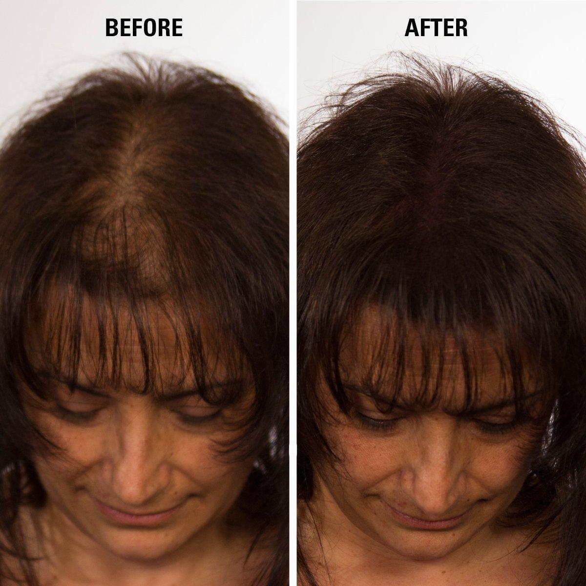 Amazon Eclipse Instant Hair Filler Medium Brown 14g Hair
