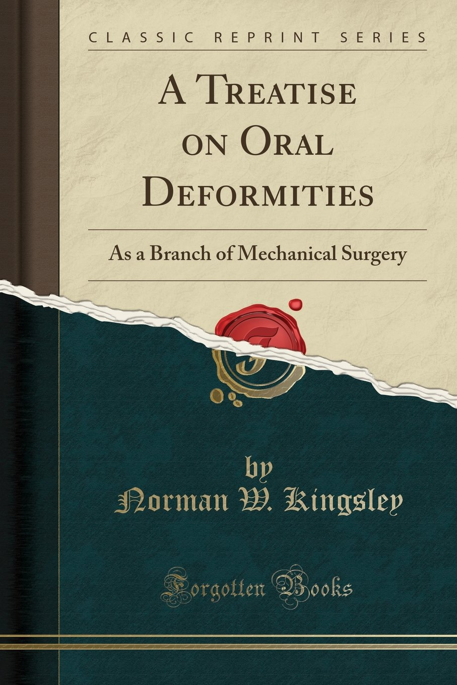 Read Online A Treatise on Oral Deformities: As a Branch of Mechanical Surgery (Classic Reprint) pdf epub