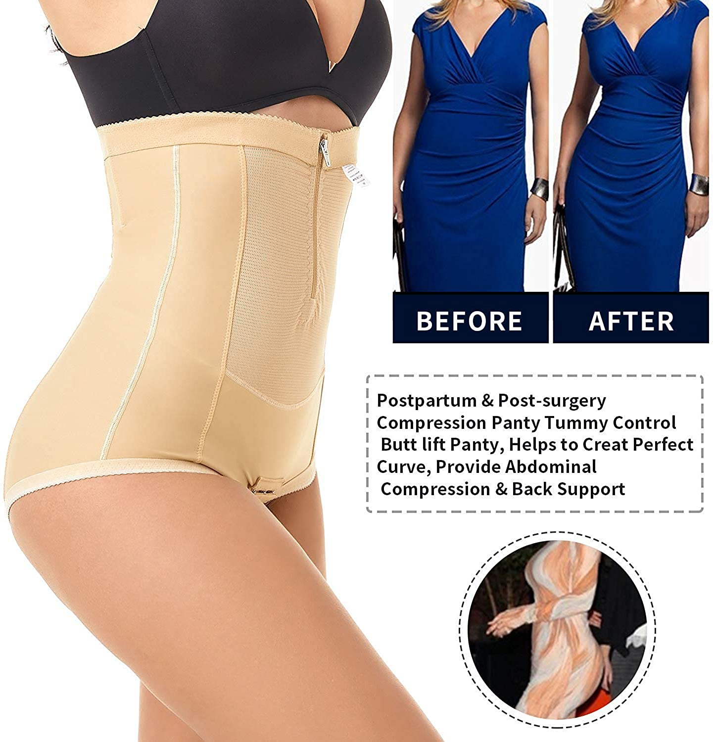 MOVWIN Postpartum Belly Wrap C-Section Panty Belly Band Abdominal Compression Corset Girdle Shorts with Zipper