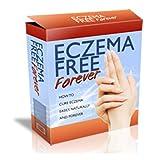 Eczema Free Forever : atopic dermatitis, eczema cream,eczema on face,nummular eczema