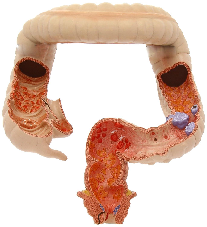 【SALE】 腸疾患モデル 腸疾患モデル B00D04RL1Y B00D04RL1Y, 漬物用心棒 飛騨山味屋:31216e6e --- a0267596.xsph.ru