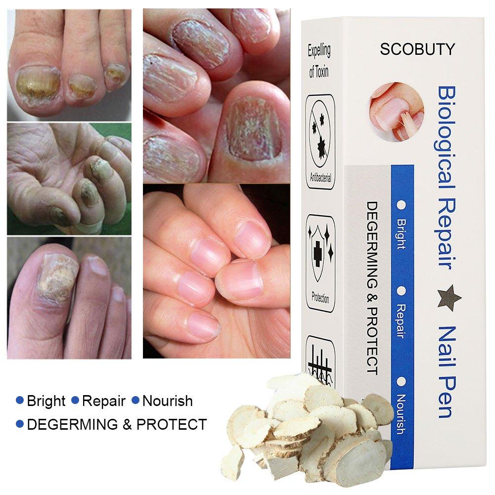 Toenail Fungus Treatment, Fungus Stop, Toenail Antifungal Care, Nail Fungus  Treatment pen, Fungal Nail Gel, Anti Fungus Nail Treatment, Nail Fungus ...