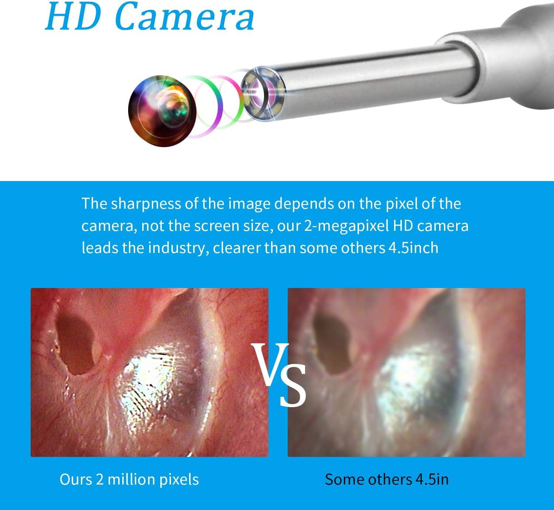 Kinder und Veterin/ärmediziner Digitales Otoskop 4,3-Zoll-1080P-HD-Bildschirm 3,9-mm-Endoskop-Endoskop wiederaufladbare Berufsinspektionskamera mit Ohrenschmalzentfernungswerkzeug f/ür Erwachsene