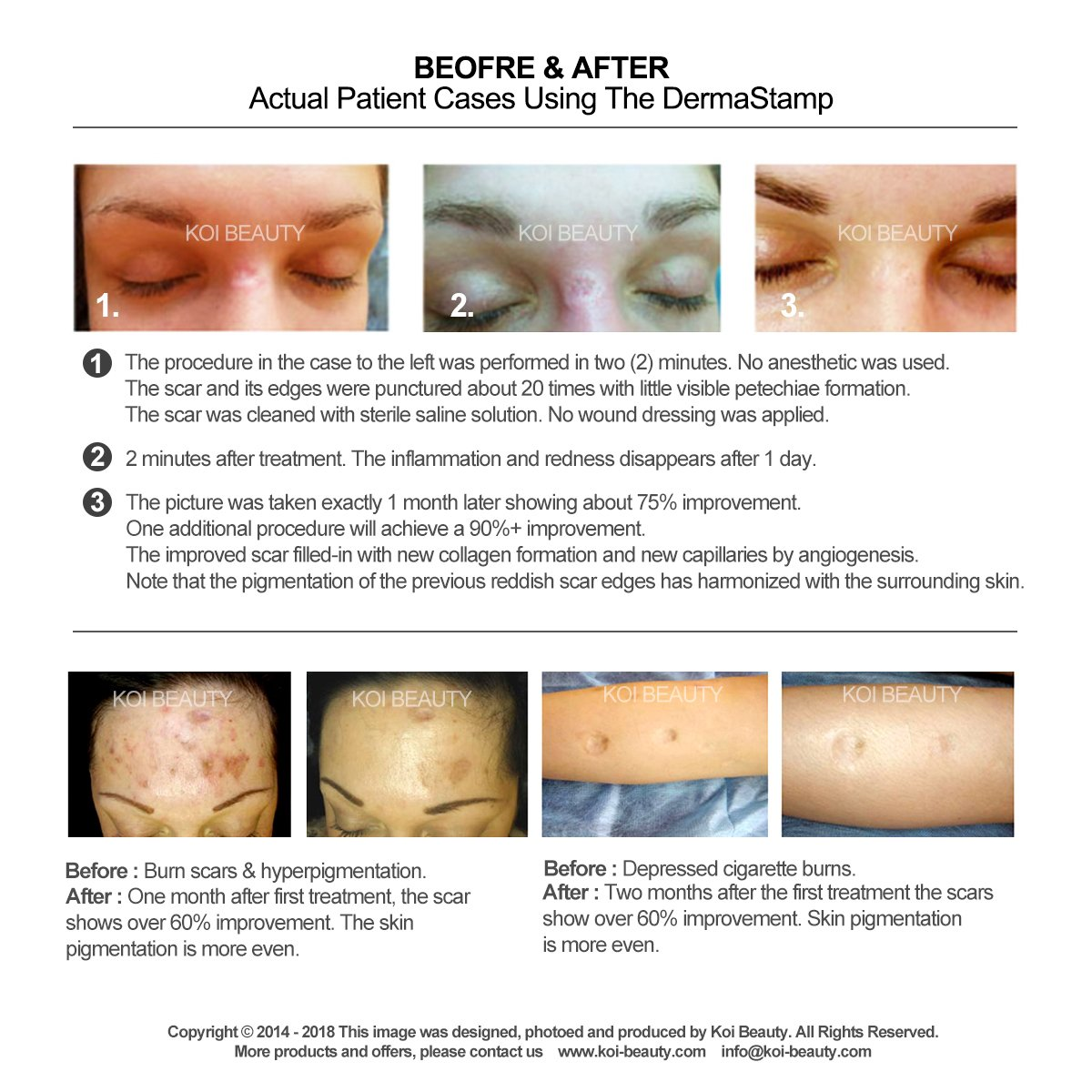 Derma Stamp 140, Koi Beauty micrones adeln Key2Life - Acero ...
