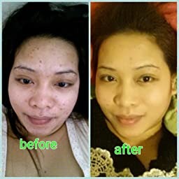 skin whitening serum by pure body naturals