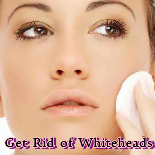 how to get rid of whiteheads instantly