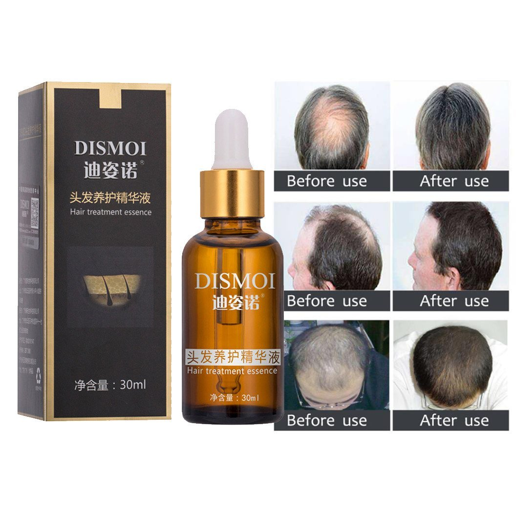 Botrong Men Liquid Beard Growth Fast Enhance Facial Whiskers Nutrition Moustache