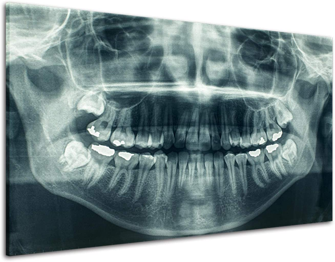 RINWUNS Canvas Wall Art X-Ray Dental Tooth Wall Painting Oral Panoramic Poster Teeth Decay Prints on Canvas Artwork for Dental Clinic Office Hospital Gift for Dentist Home Decor -16x24inch(Framed)