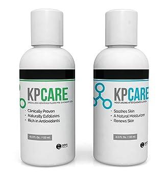 keratosis pilaris treatment