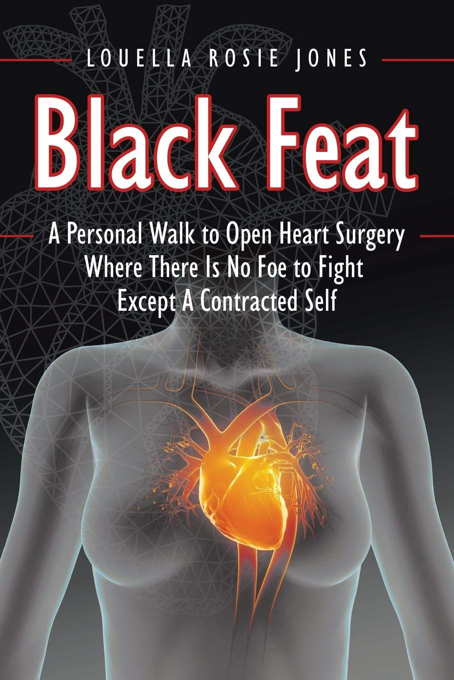 Black Feat: A Personal Walk to Open Heart Surgery Where There Is No Foe to Fight Except A Contracted Self ebook