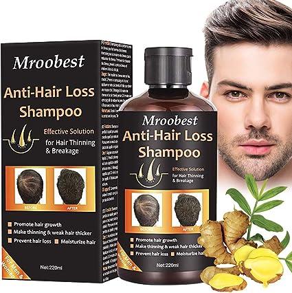 Hair Loss Shampoo, Champú Anticaida, Anti Pérdida De Cabello ...