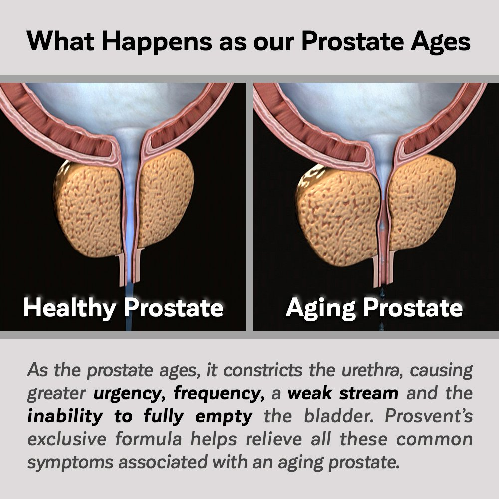 PROSVENT-NATURAL PROSTATE HEALTH SUPPLEMENT -Clinically Tested Ingredients- Reduce Urgency & Frequency. Improve Flow, Sleep, Health & Quality Of Life. OVER 180 MILLION DOSES SOLD! –3 Month Supply by Prosvent (Image #7)