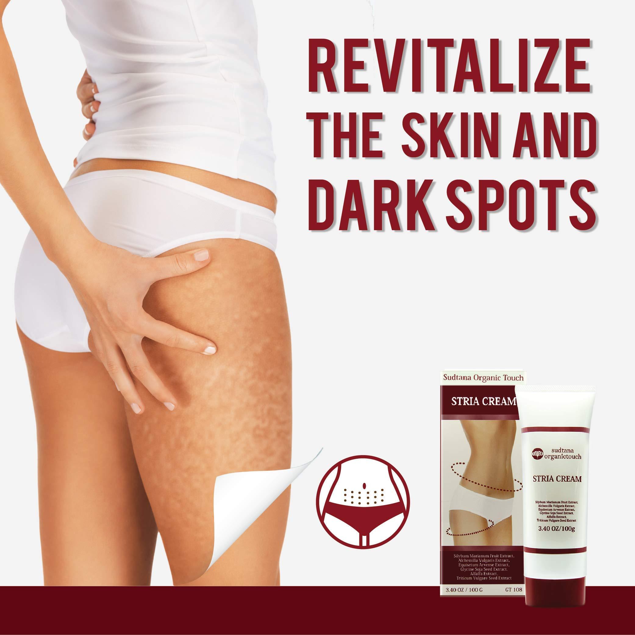 STRIA Natural Stretch Marks, Scar & Dark Spot Remover   Stretch Mark Cream for Skin Hydration, Exfoliation, Tightening & Collagen Boost   Pregnancy Belly Care for Prenatal-Postnatal & Pregnant   3 pcs by GreenTouch (Image #5)
