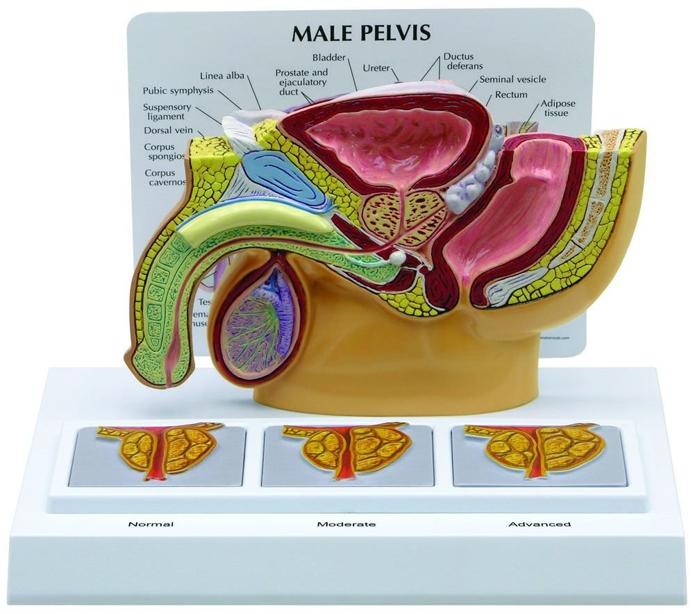 Amazon.com: Male Pelvis Anatomical Model - Three Prostate 3D Image ...