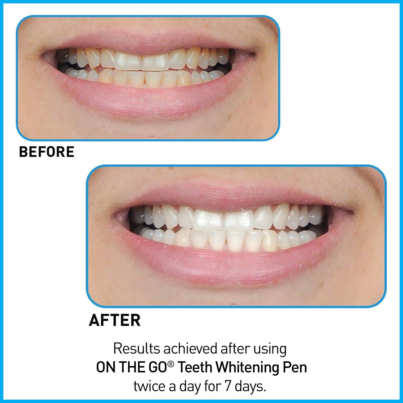 Amazon Go Smile On The Go Teeth Whitening Pen Duo 2 Count