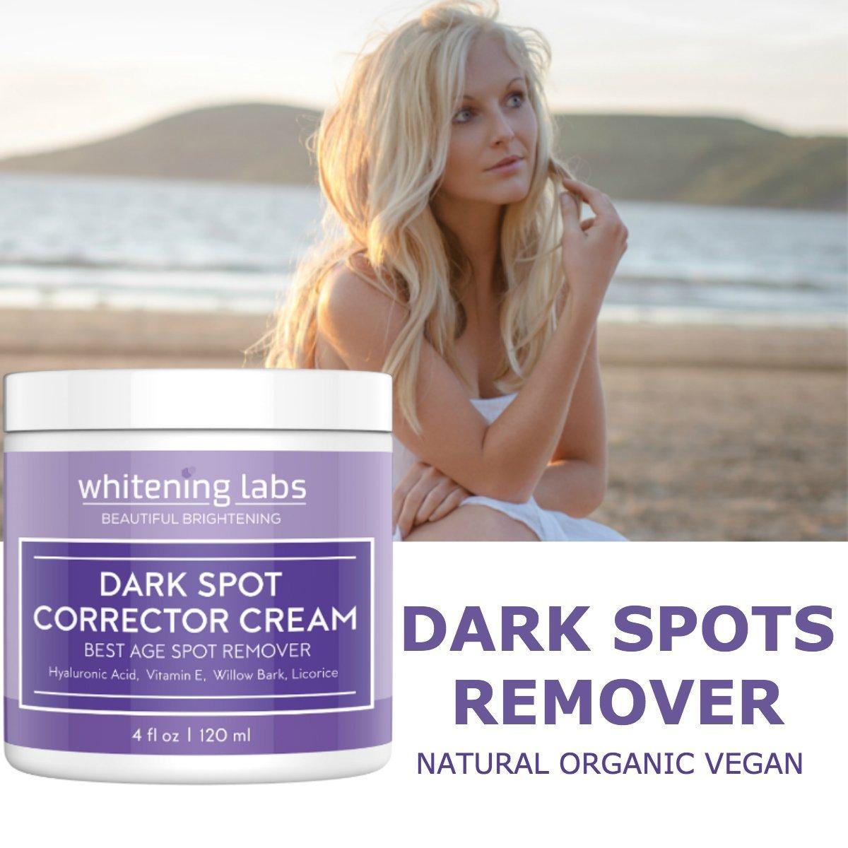 Amazon.com: Crema Para Las Pecas Y Manchas De La Cara Y Manos - Crema Para Quitar Las Pecas Causadas Por El Sol: Beauty
