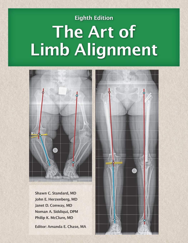 The Art Of Limb Alignment