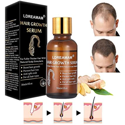 Hair Growth Serum,Hair Treatment Serum Oil,Hair Serum,Hair Growth Treatment,Hair Regrowth Of Thinning Hair   Promotes Hair Growth,Stops Hair Loss,Thinning,Balding,And Promotes Hair Regrowth (30 Ml) by Ldreamam