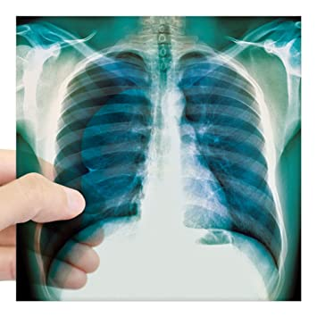 Cafepress pneumothorax x ray square sticker 3 x 3 square bumper