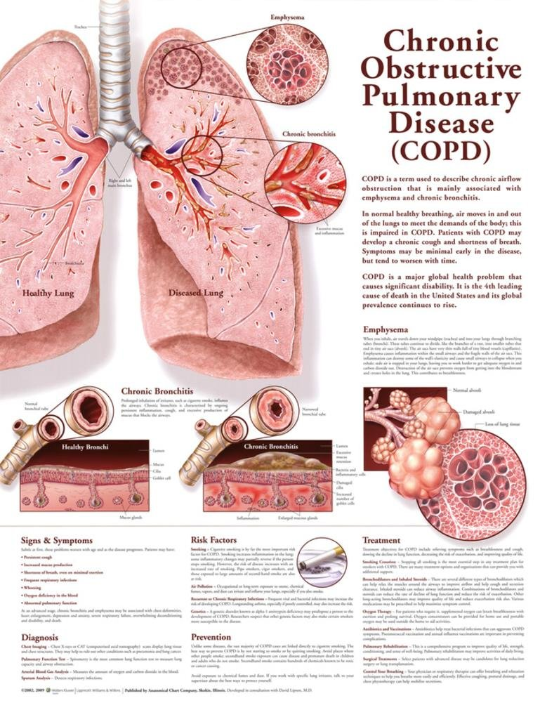 Amazon 20x26 chronic obstructive pulmonary disease copd amazon 20x26 chronic obstructive pulmonary disease copd anatomical chart 2nd edition poster print industrial scientific ccuart Choice Image