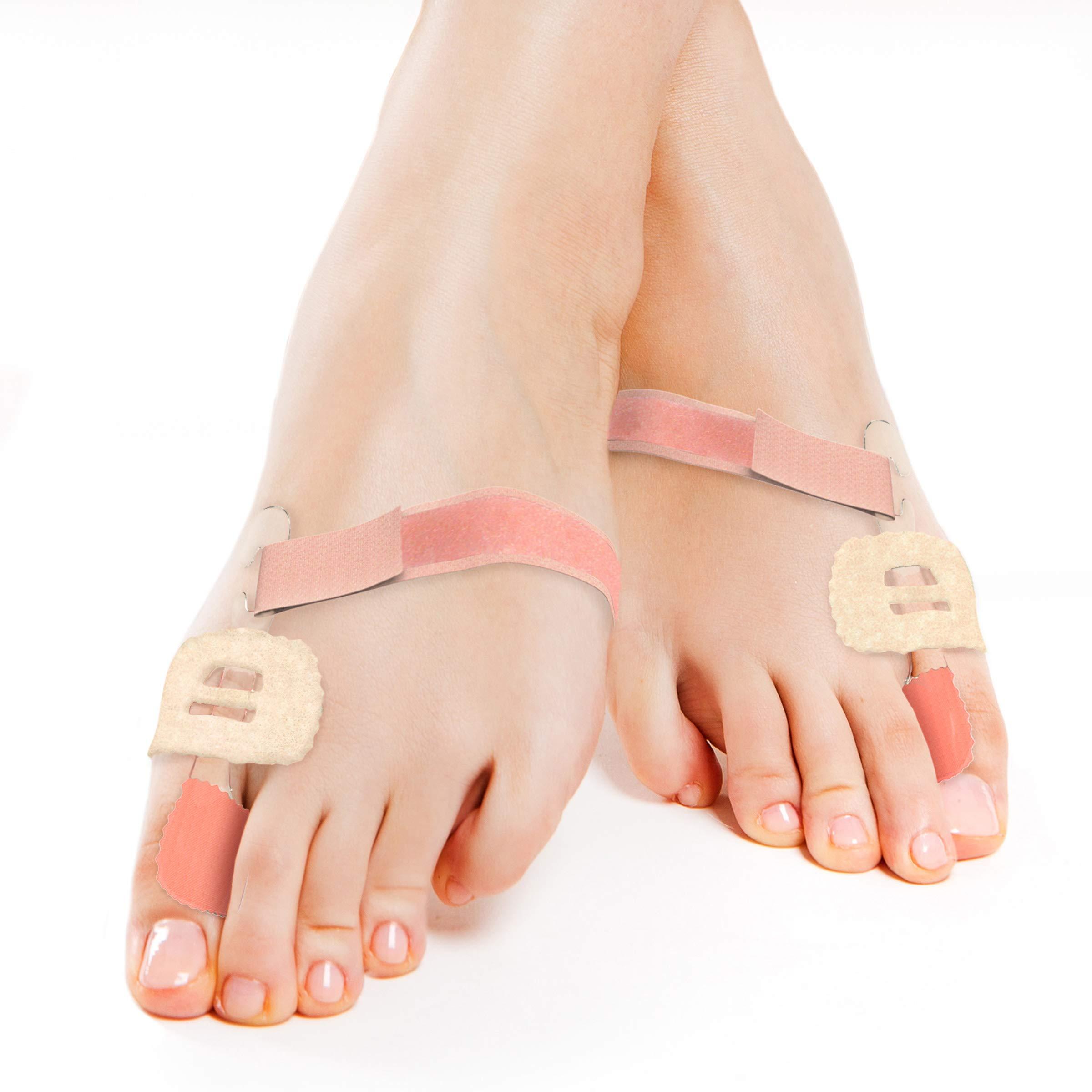 Bluestone Bunion Corrector Splint - Nighttime Pain-Relieving Orthopedic Toe Straightener Brace with EVA Foam Pad and Adjustable Strap (Set of 2) by Bluestone