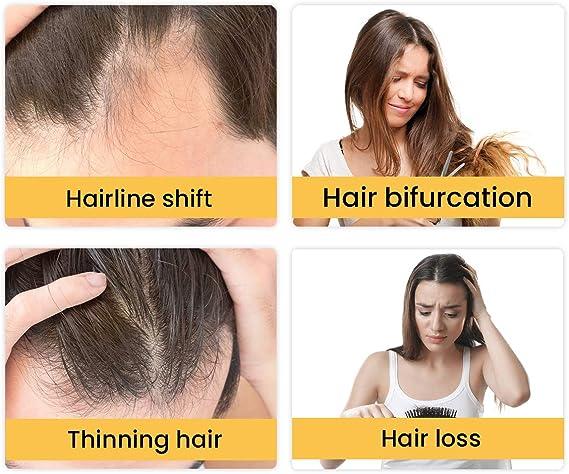 YFM Crecimiento de Cabello, Tratamiento para el Cabello, Aceite para el Crecimiento de Pelo, Hair Serum, Estimula el Crecimiento de Pelo para Hombres ...