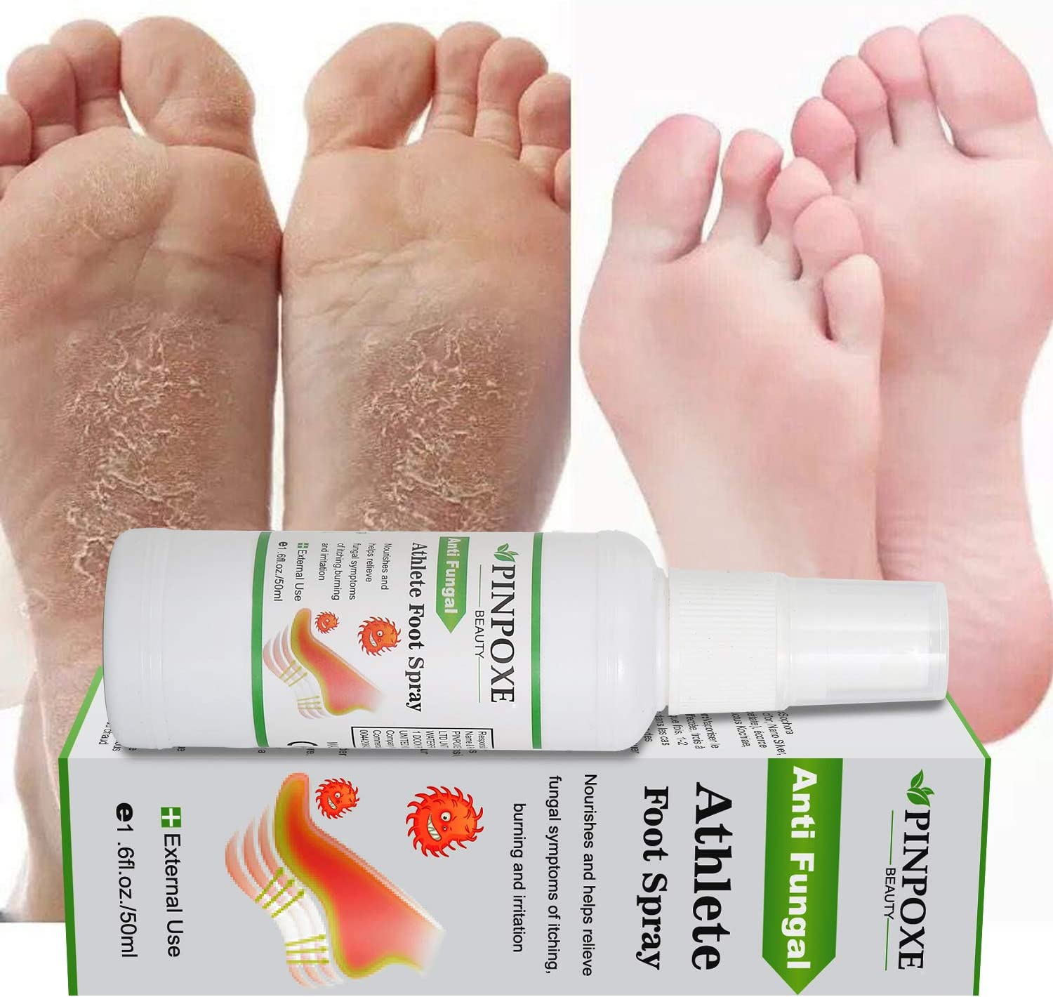 Foot Spray, Natural formula, Athletes Foot, Ringworm, Jock Itch and Foot Infections. Effectively Soothes in Minutes-Fights Against: Health & Personal Care