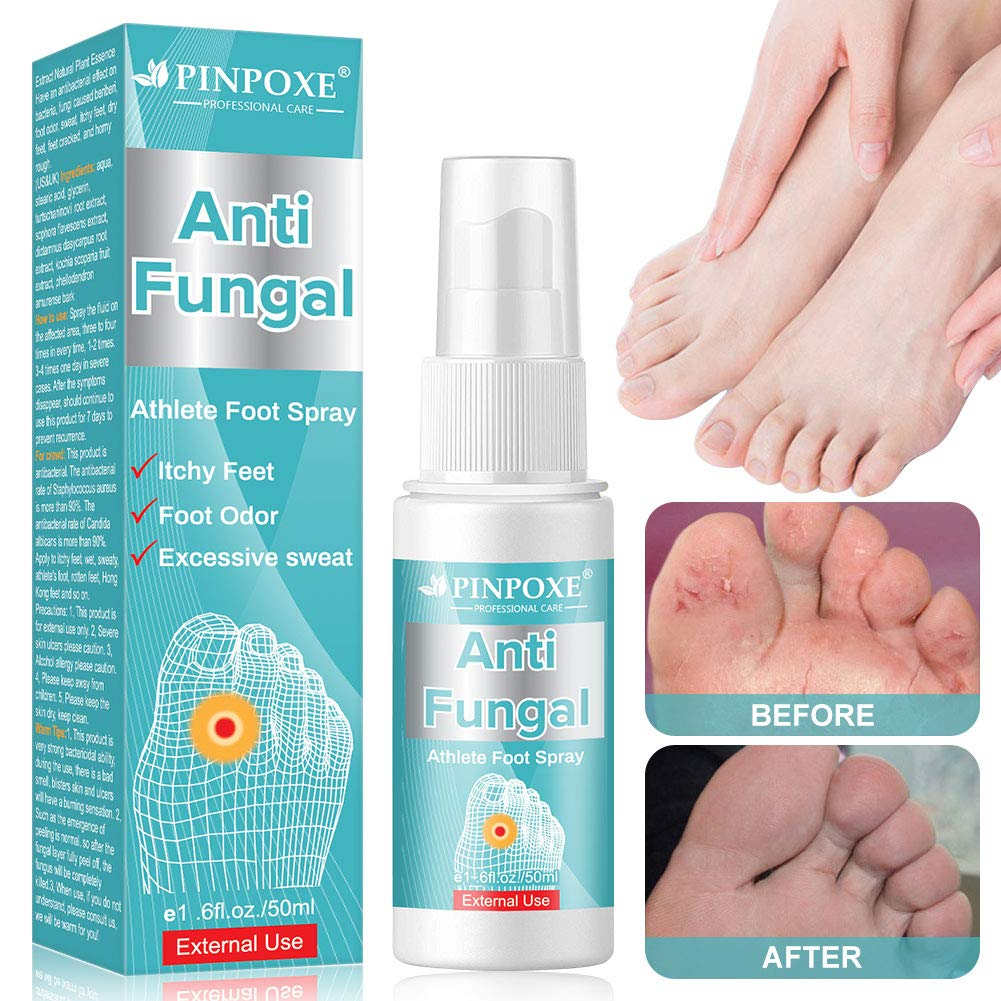 Athletes Foot Spray, Antifungal Deodorant, Antifungal Foot Spray, Anti-Fungi Treatment of Athletes Foot and Ringworm