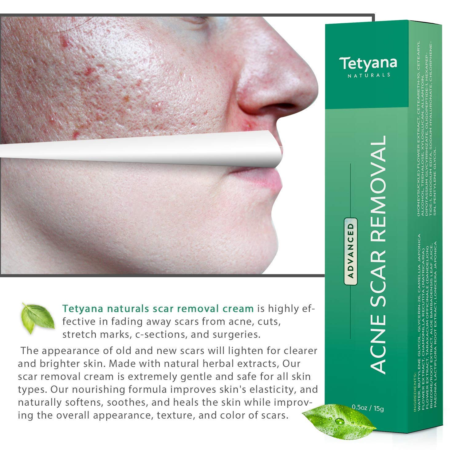 Tetyana naturals Scar Gel Acne Scar Removal for Face  Body Old  New Scars from Cuts Stretch Marks