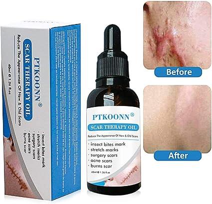 Cicatrices Tratamiento,cicatrices Serum,Scar Oil,reducir Viejos y ...