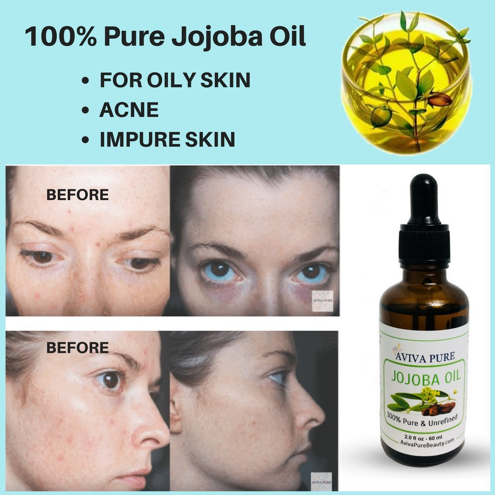 Amazon.com: Jojoba Oil by Aviva Pure- 100% Unrefined Pure Cold Pressed  Moisturizer for Skin, Face, Hair and Makeup Removal - Great Cuticle Oil-  Even Good ...