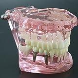 Dentalmall 1 Pc Dental Implant Study Analysis
